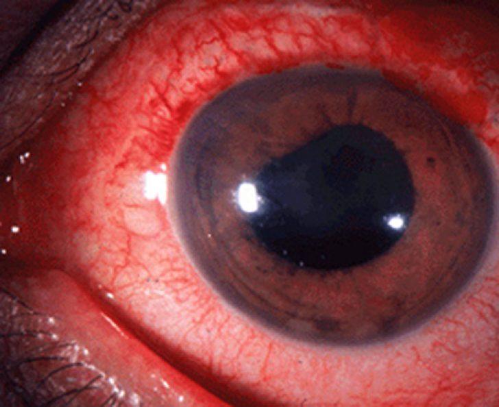 при котором ослабевает деятельность одной или нескольких мышц, управляющих движением глаз, называется косоглазием