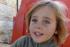 разные глаза у ребенка