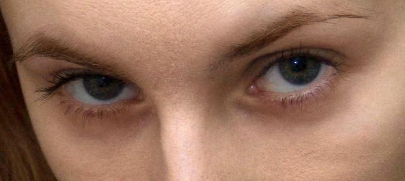 под глазами синяки и чешется
