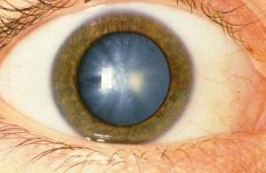 Ядерная катаракта