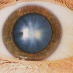 glaukoma3