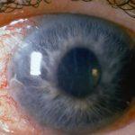glaukoma5