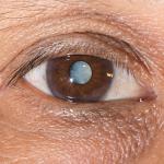 glaukoma6