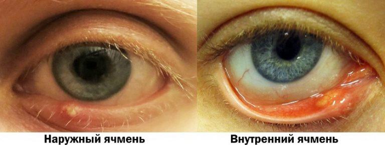 naruzhnyj-vnutrennij-yachmen